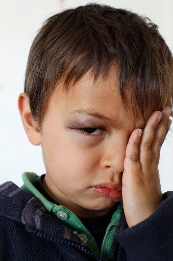 Photo of a young boy with a blue eye   Photo: Getty Images