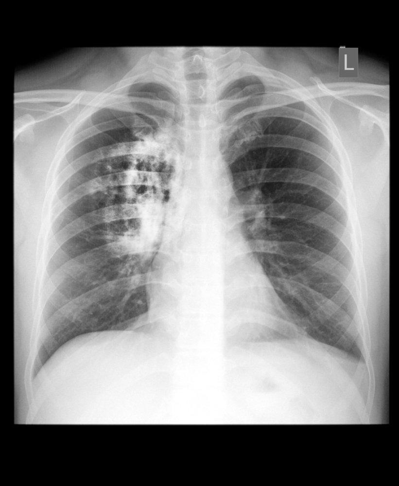 Cáncer de pulmón. Fuente: Shutterstock