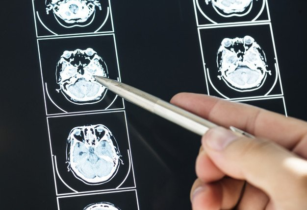 MRI - Foto: Freepik