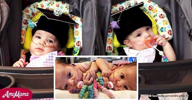 Les jumelles siamoises sont séparées avec succès et rentrent chez eux pour Noël