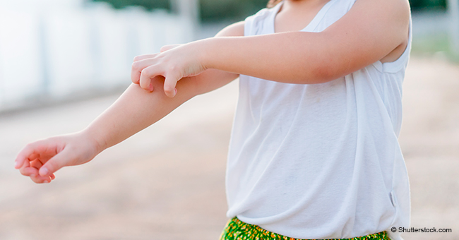Une jeune fille de 3 ans est allergique aux températures chaudes et froides, et rien ne peut être fait pour y remédier