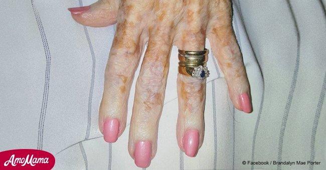 Une infirmière peint les ongles d'une vieille dame et partage la photo