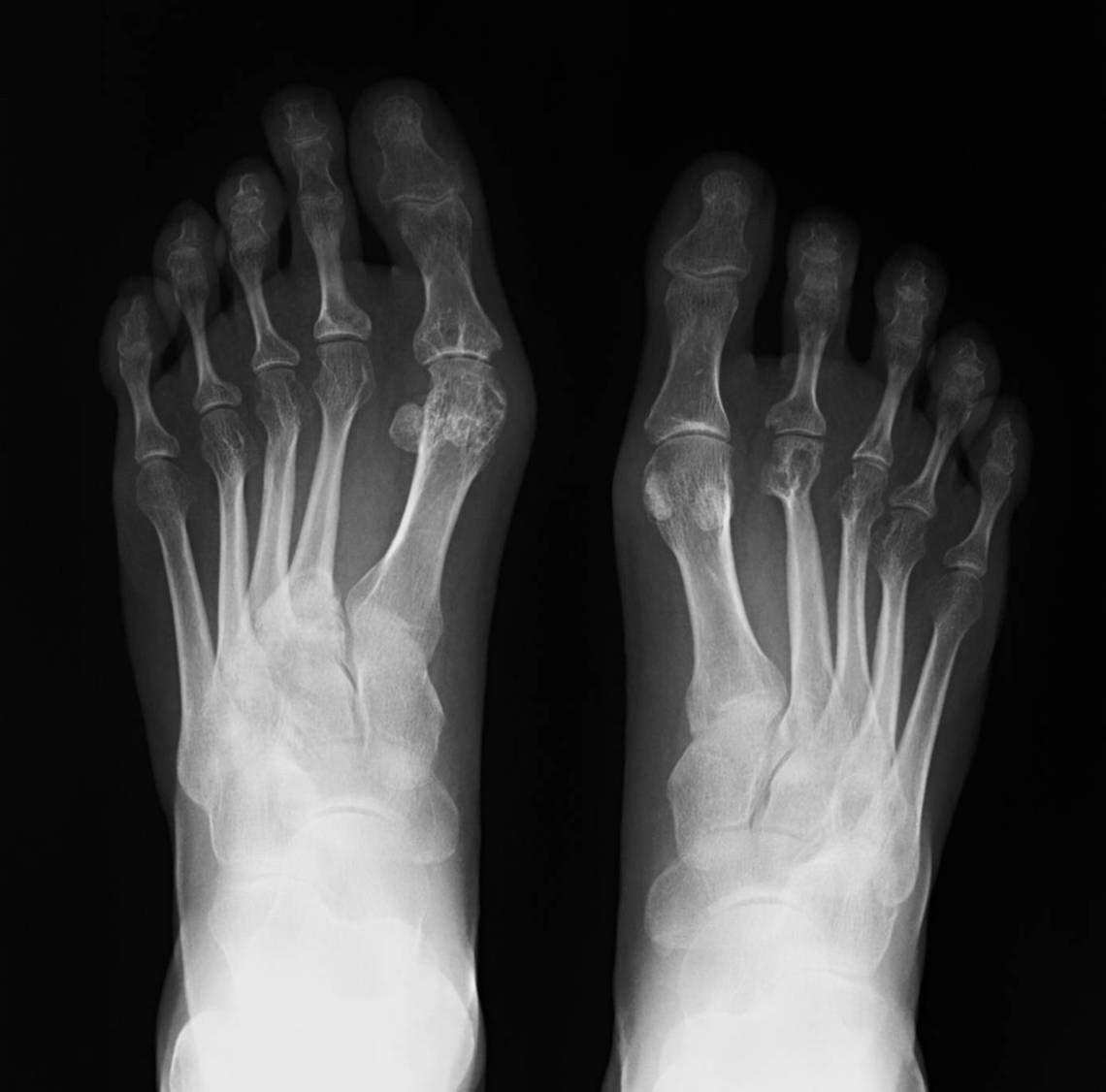 Placa de pies con artritis. | Imagen: Wikipedia